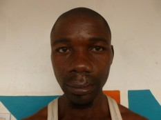 Etienne CAMARA postop (1) (Small)